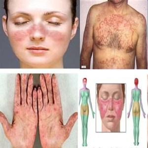Jual Obat Lupus