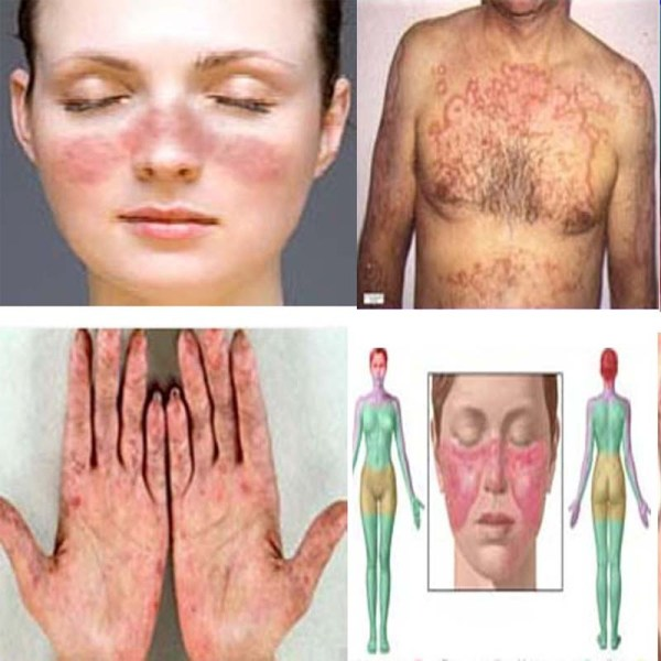 a study on the chronic disease lupus A cure for lupus could be coming soon new research suggests that the key to curing the chronic autoimmune disease known as lupus may lupus clinical study.